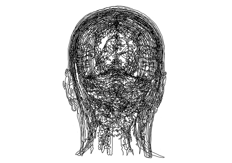 head, CT scan